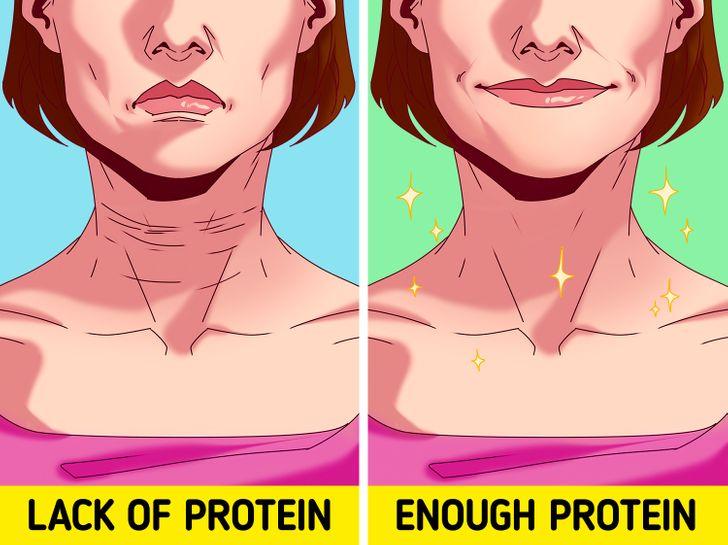 6 faktorë që mund të shtojnë rrudhat në lëkurën tuaj