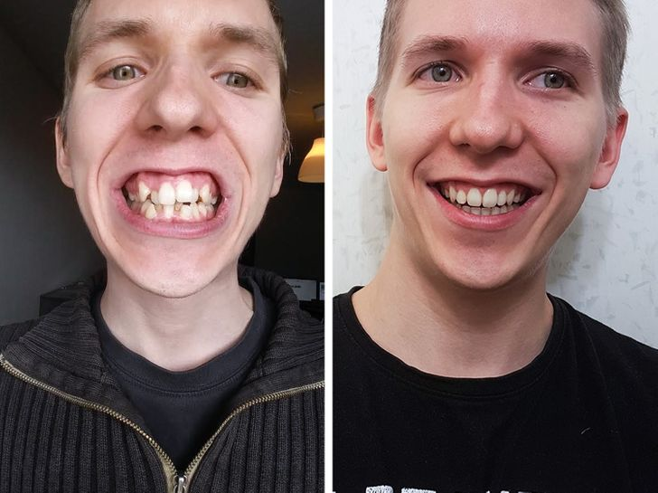 Internet Users Showed How Much Their Look Changed After They Fixed Just One Detail