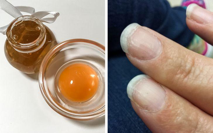 10Natural Ways toFix Your Brittle, Weak Nails
