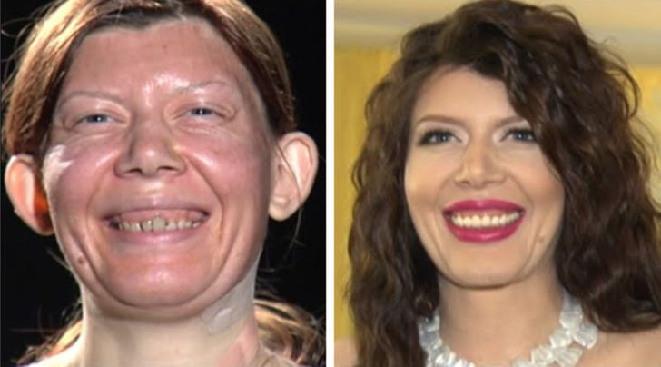 18 Women That Took Part in Transformation Shows and Became Completely New People