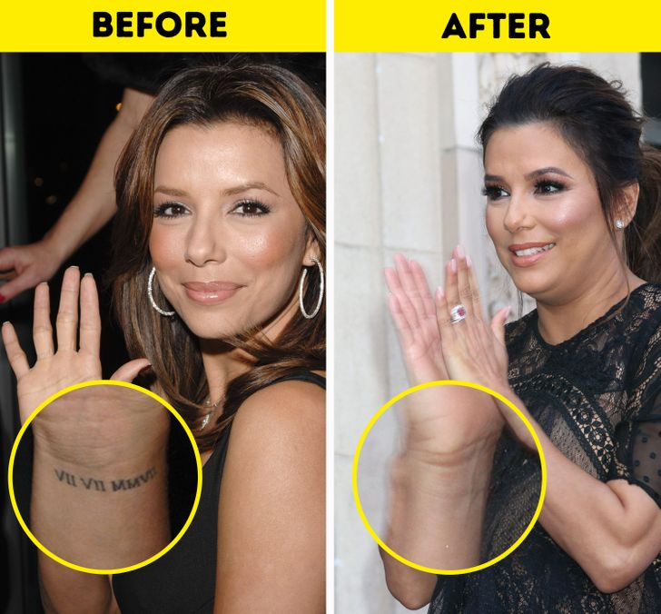 10+ Celebrities Who Decided to Get Rid of Their Tattoos (Some of Them Are Really Embarrassed)