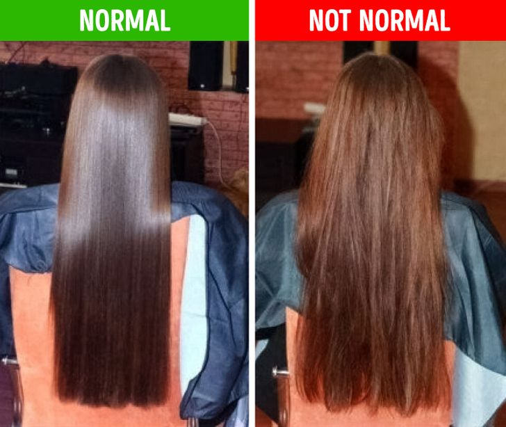 8Things Your Hair Can Tell You About Your Health