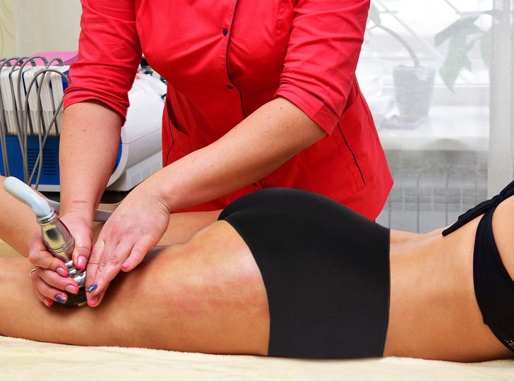 Dermatologists Share Tips to Reduce Cellulite That Actually Work