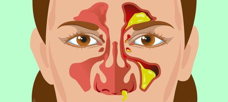 9Things Your Snot Says About Your Health