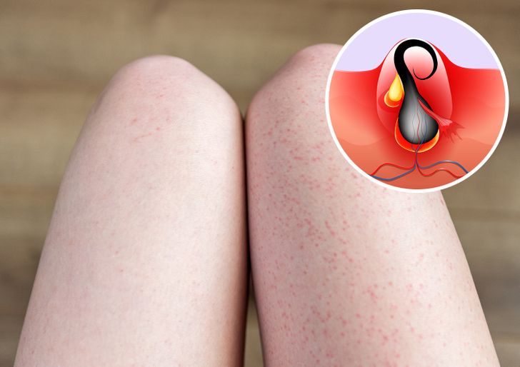 What Causes Strawberry Legs and How to Get Rid of It