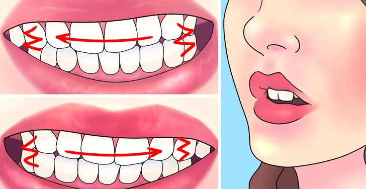 How toStop Grinding Your Teeth atNight