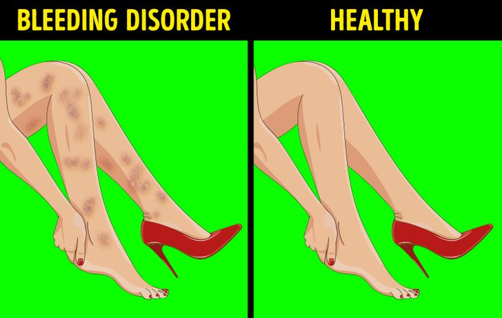 6 Ways Your Legs Can Show You if Something's Wrong With Your Inner Organs