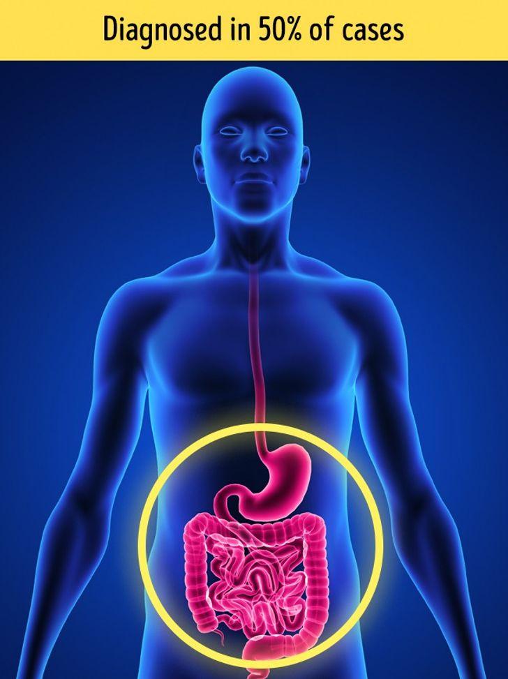 8 Warnzeichen und Erkennung für Herzinfarkt