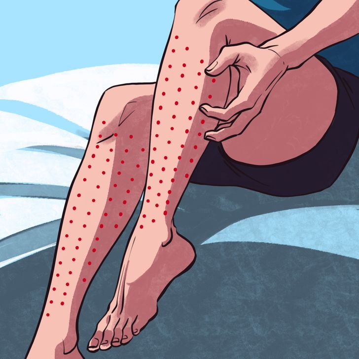Ways to Check If You Have Restless Legs Syndrome and Why You Need to See a Doctor If You Do