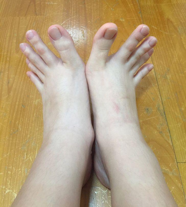 Jari kaki yang bisa 'mekar'.