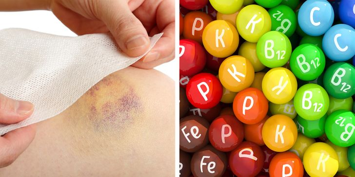 IfYou Have Unexplainable Bruises onYour Body, Here Are7 Health Problems That Can Bethe Reason