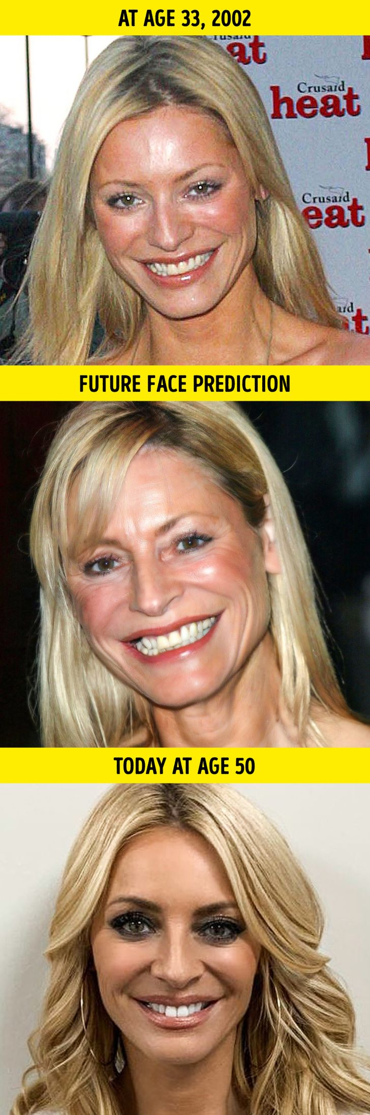 A Plastic Surgeon Reveals How 10 Celebrities Would Look If They Aged Like Average People