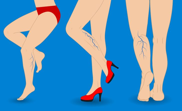8Natural Ways toFight Spider and Varicose Veins