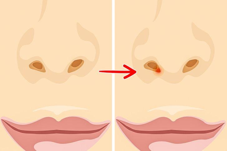 Prečo si vyberanie nosa nie je len neslušné, ale môže byť aj škodlivé