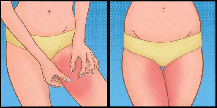 10Effective Ways toPrevent aRash onthe Inner Thighs