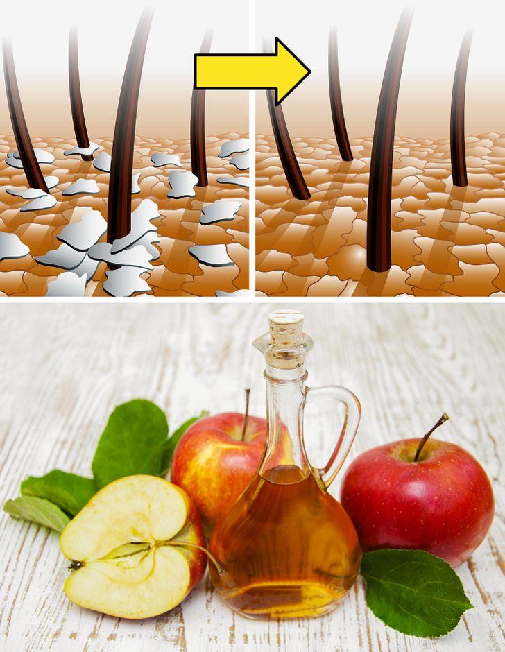 50+Uses for Apple Cider Vinegar That Can Make Your Life Easier