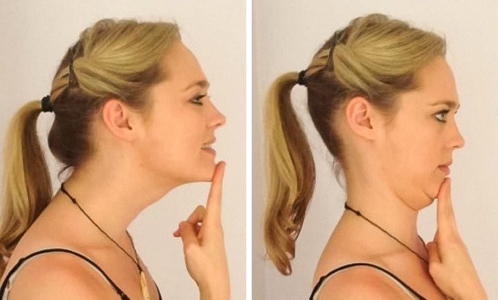 7 Effective Ways to Get Rid of Neck Pain