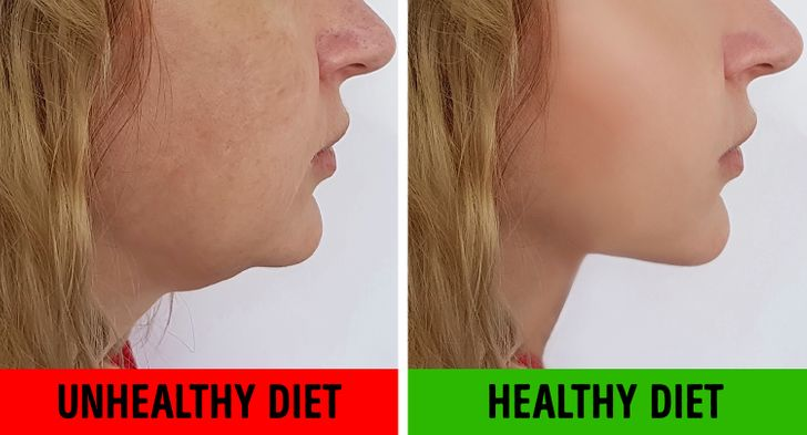 how to lose chin diet
