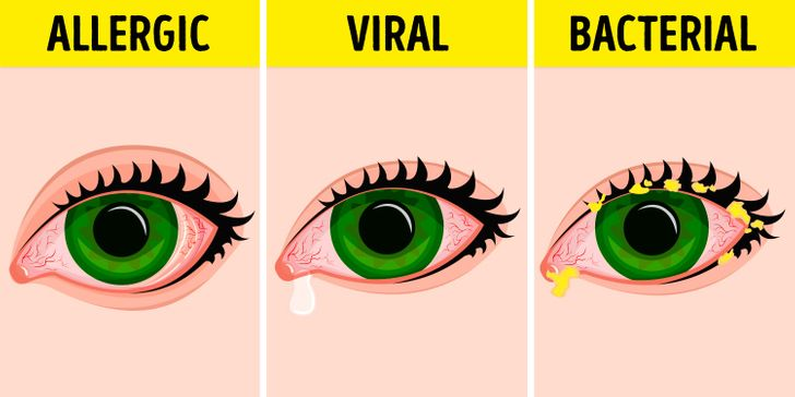 14Effective Ways toTreat and Prevent Eye Infections Naturally
