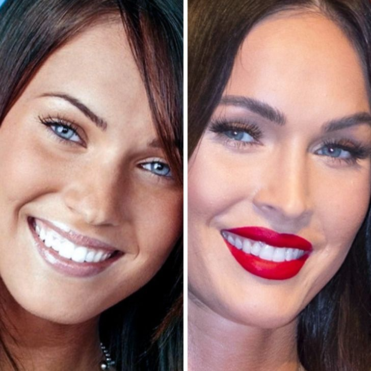24 Close-Up Comparisons That Show How Our Favorite Celebrities Have Changed