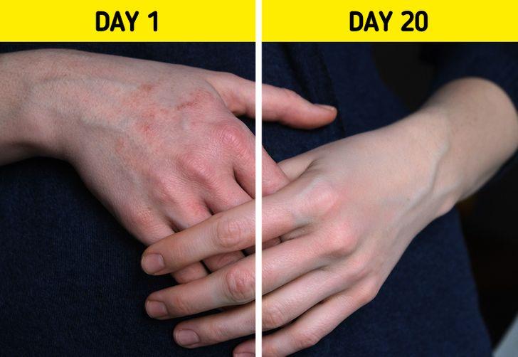 Kuru Ellerinizi Evde Kurtarmanın 6 Yolu