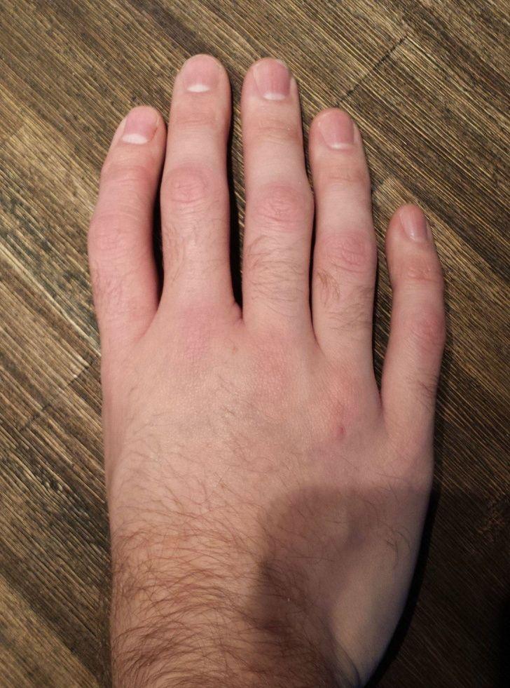 Lima jari yang berbeda.