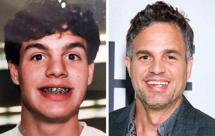 20 Celebrity Transformations That Left Us Feeling Dumbstruck