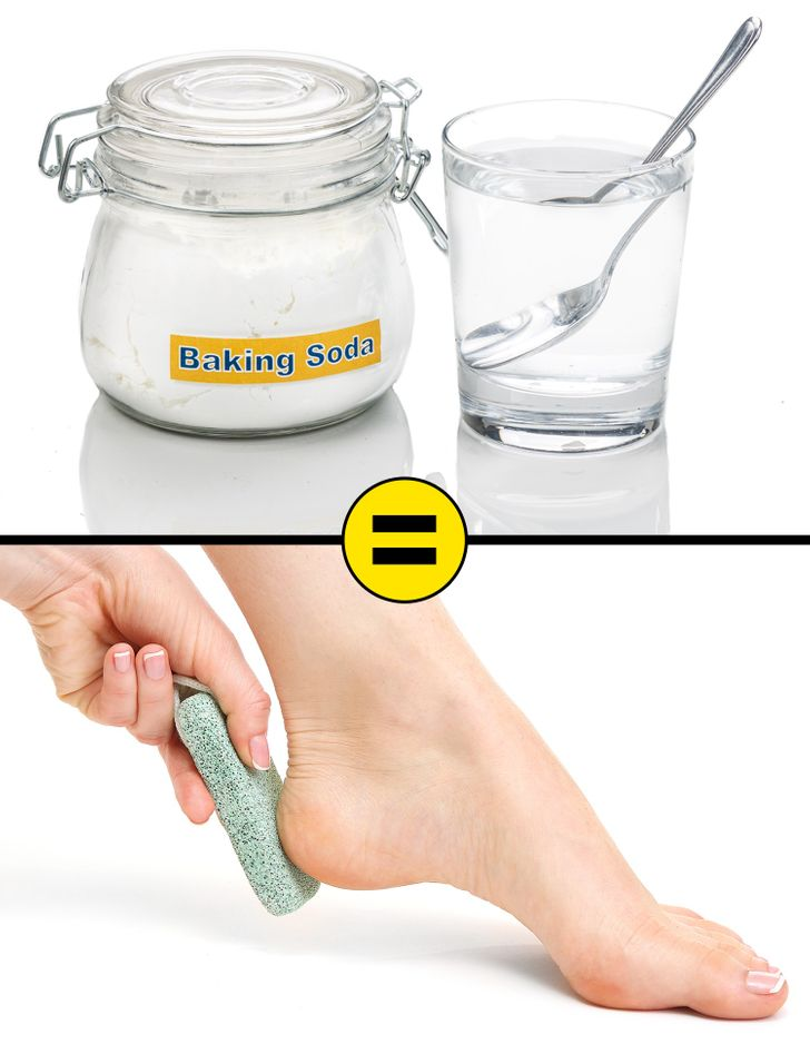 cracked heels treatment at home