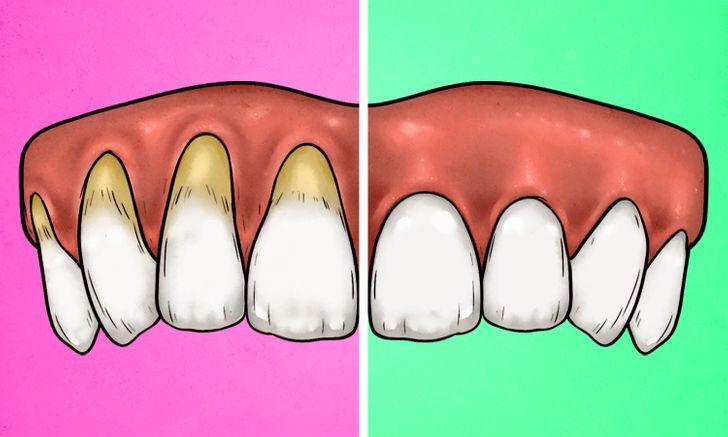 4 علامات تدل على أنك تغسل أسنانك بالفرشاة بشدة ، و 4 طرق لإصلاحها