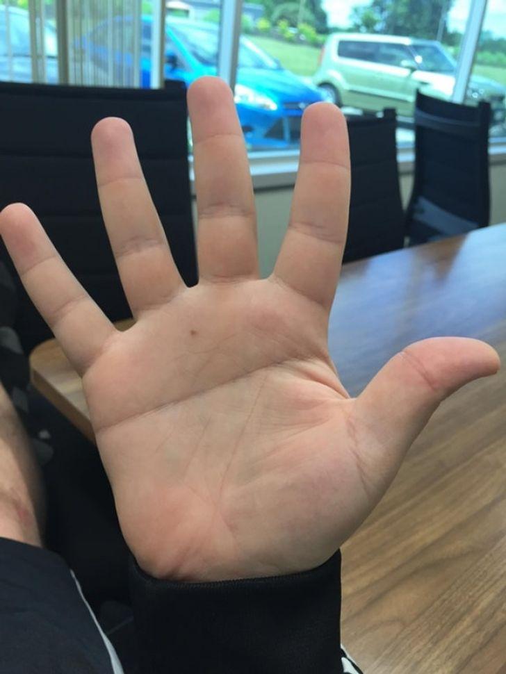 Garis tangan lurus.