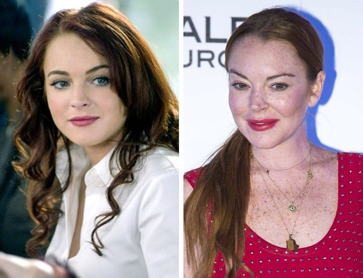 How Plastic Surgery Dramatically Changed These Celebrities