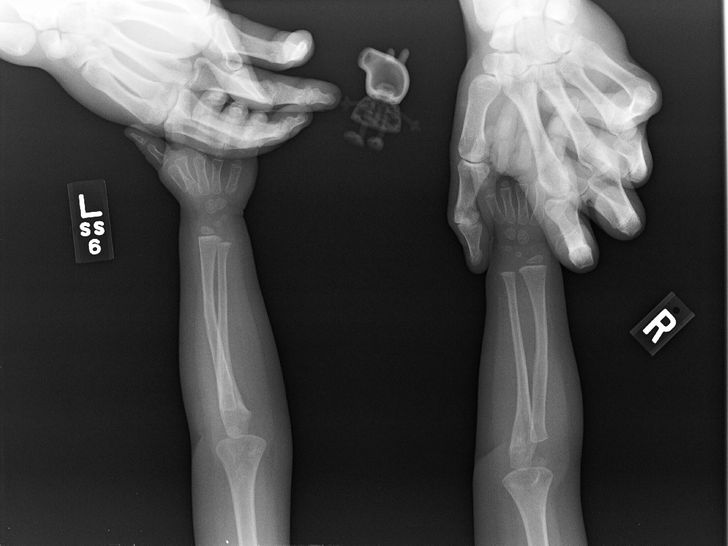 Funny Xray Pictures