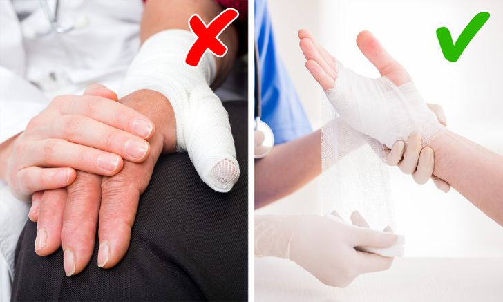 10+ Quick First Aid Tips That Can Save Your Day
