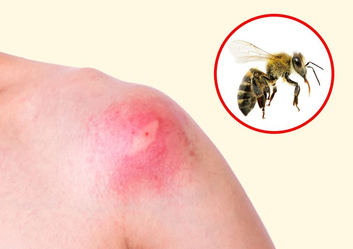 How to Identify a Bug Bite and What to Do With It
