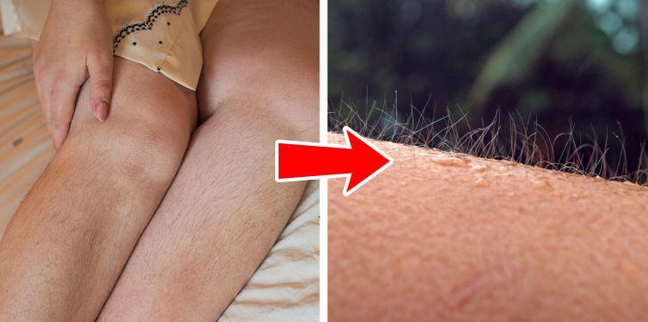 5 pozitívnych vecí, ktoré sa vám stanú, ak prestanete holiť svoje telo hneď teraz
