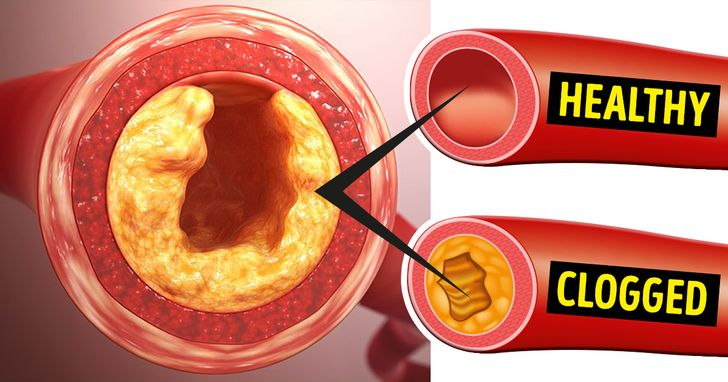 12 Foods to Avoid Like Fire If You Want to Unclog Your Arteries