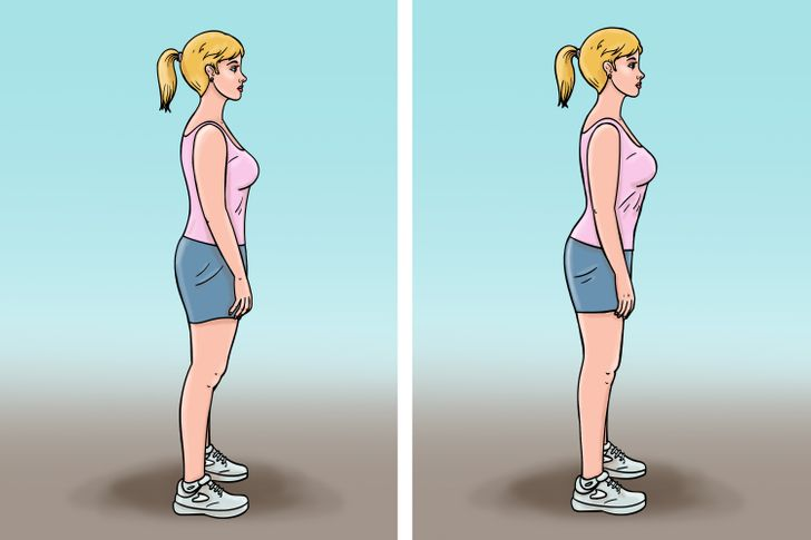 What Is Dead Butt Syndrome and How to Avoid It