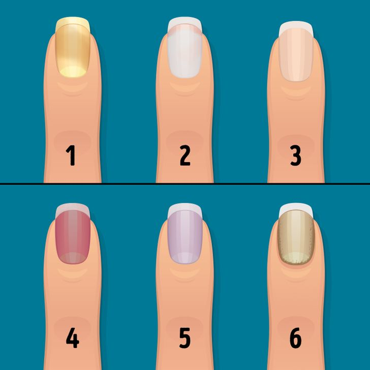 16Things Your Nails Can Say About Your Health