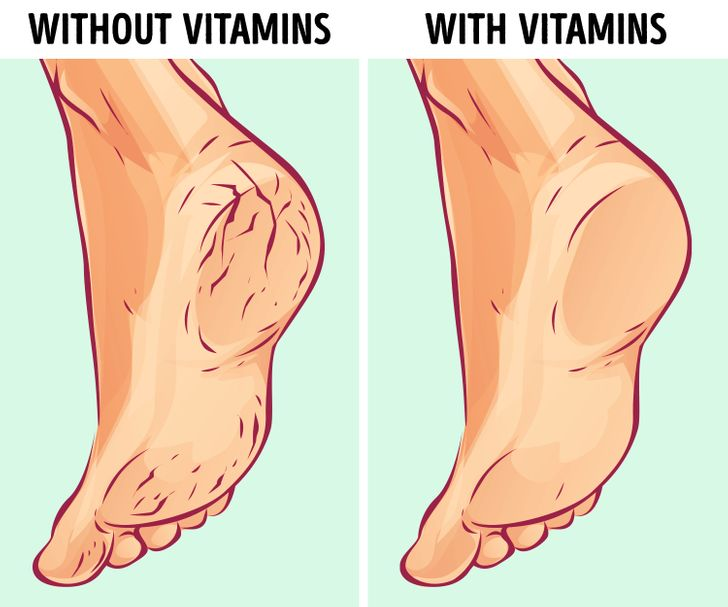Why You May Get Cracked Heels and How to Fix Them Naturally