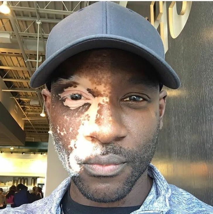 Vitiligo pada wajah.