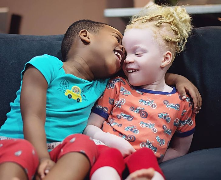 Twins With Different Skin Colors Astonished Their Mom When They Were Born