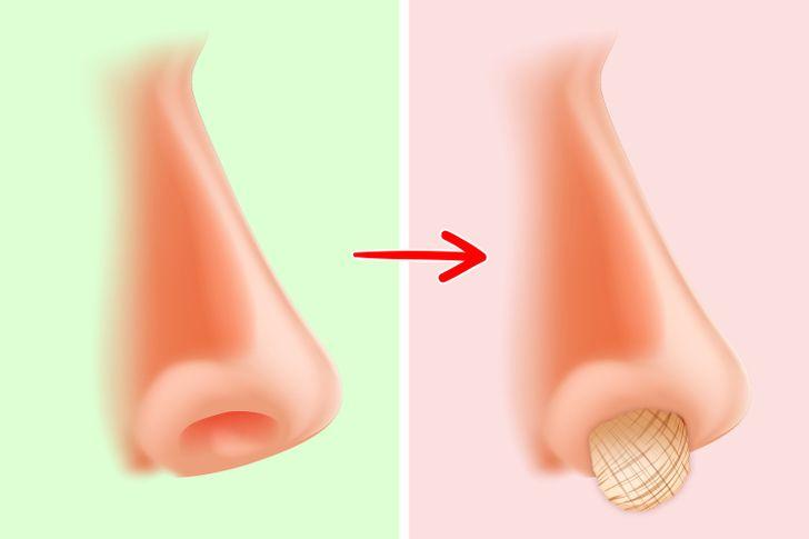 špáranie v nose