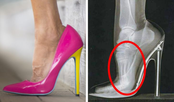 6Types ofShoes That Can DoToo Much Damage toYour Body