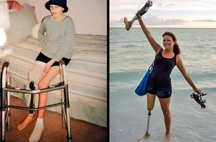 25 'Before and After' Photos That Are Difficult toTear Our Eyes Away From