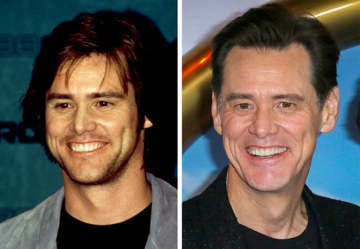 How the Smiles of 15 Celebrities Changed After They Fixed Their Teeth