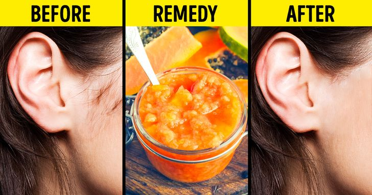 9 Ways To Naturally Get Rid Of Facial Hair That Actually Work
