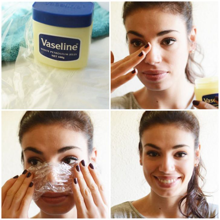 8 Natural Ways to Get Rid of Blackheads and Whiteheads Fast