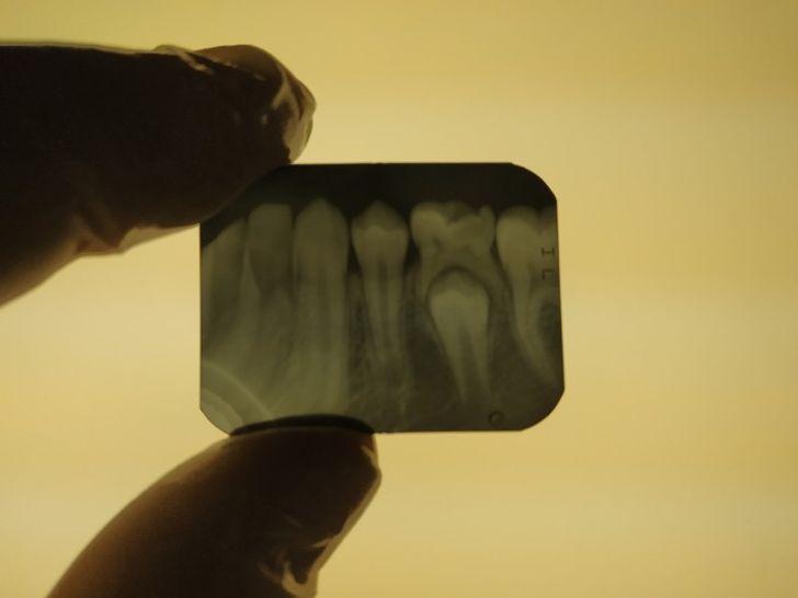 14 röntgenových lúčov, ktoré ukazujú skryté časti nášho života