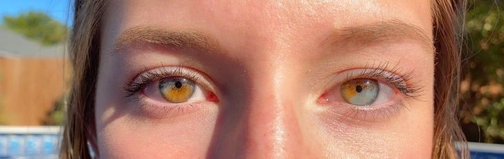 20+ Times Mother Nature Gifted People With Unique Physical Traits