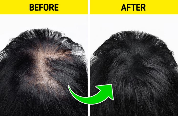 9 Ways to Regrow Your Hair Naturally and Forget About Bald Spots